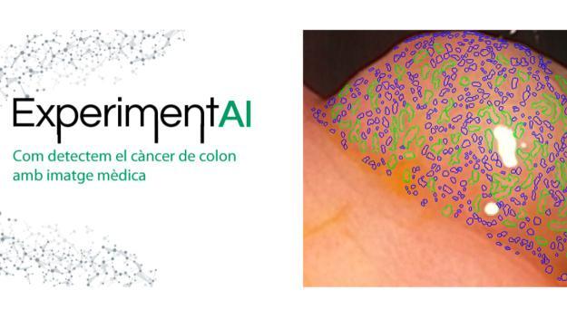 ExperimentAI 12: 'Com detectem el càncer de còlon amb imatge mèdica'