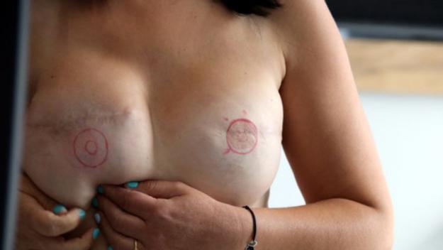 Pits operats després d'un càncer de mama / Font: ACN