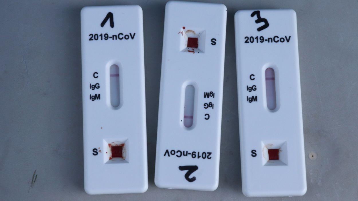 El govern espanyol dona llum verda a la venda de tests d'antígens a les farmàcies sense recepta