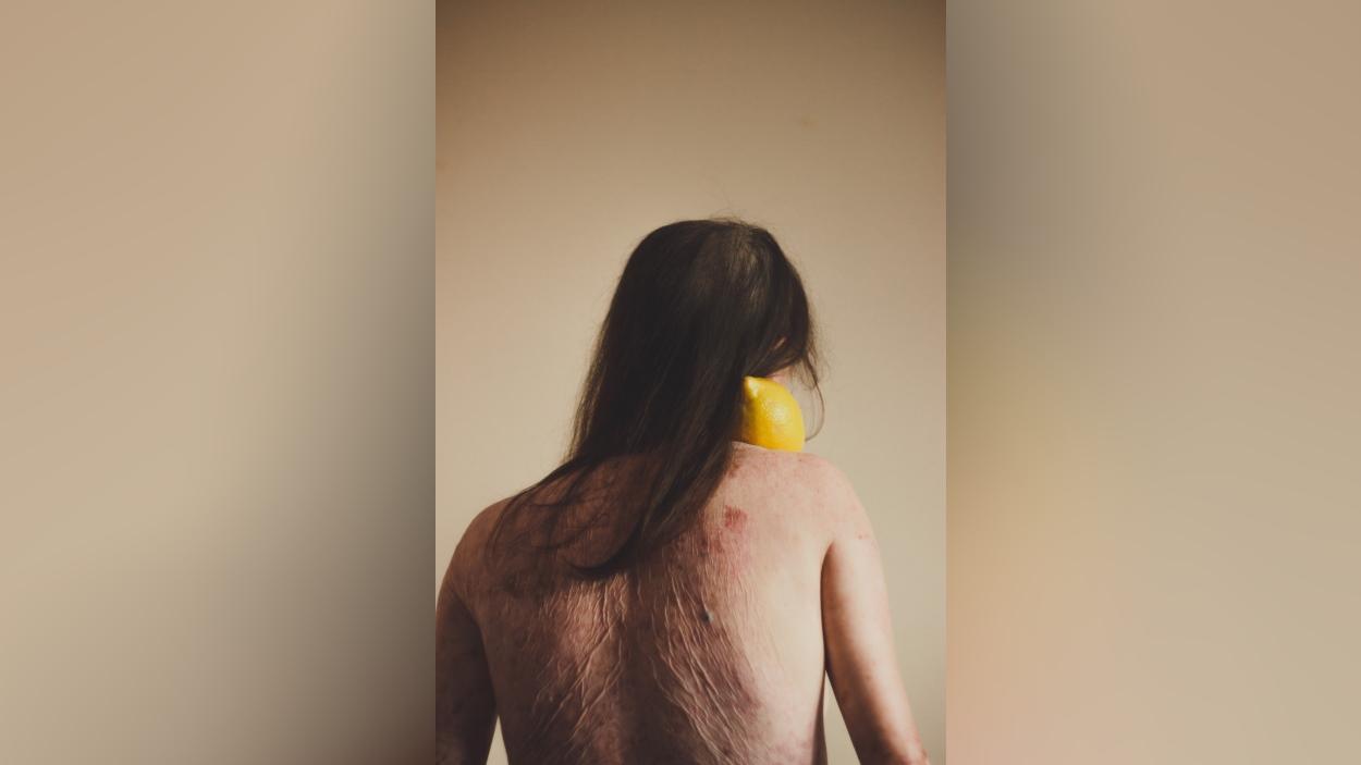 Exposició: 'Pell meva'