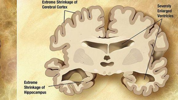 L'Associació de Familiars d'Alzheimer explica la importància del test com a prova diagnòstica