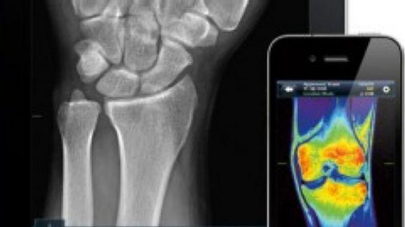 La tecnologia pot millorar la vida als malalts crònics